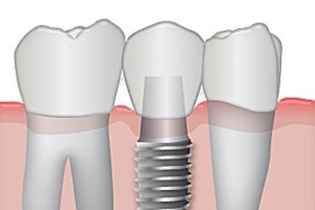 Предлагаем узнать сколько стоит протезирование зубов в Минске и цены 2017, протезирование зубов в Минске стоимость тарифы и расценки. Фото 3