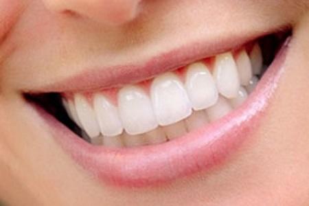 Предлагаем лечение и протезирование зубов цены в Минске, виды протезирование зубов в Минске в кредит и рассрочку. Фото 2