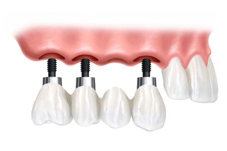 Предлагаем лечение и протезирование зубов цены в Минске, виды протезирование зубов в Минске в кредит и рассрочку. Фото 3